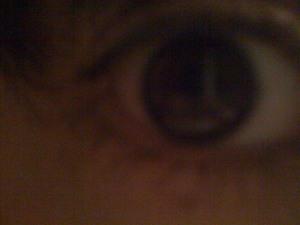 dryeye.jpg
